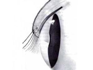 EctopicoCilios